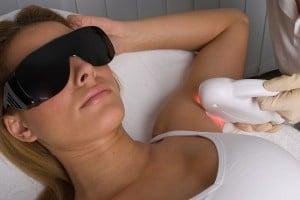 épilation laser et précautions